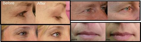 led light therapy before and after red led light therapy save on powerful anti aging system