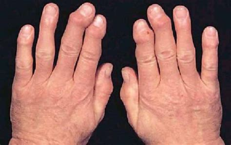 arthritis hands medical pictures info health