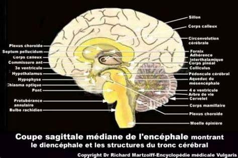 image photo cerveau coupe sagittale mediane neurologie