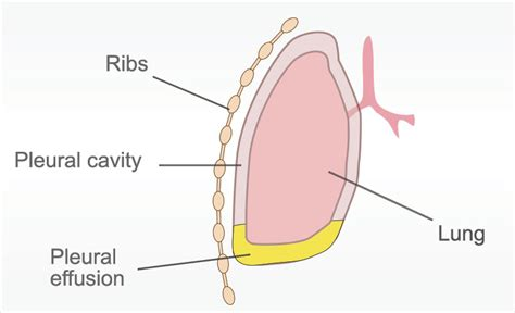 pleural mesothelioma  guide  understanding pleural cancer