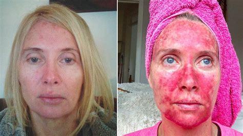 womans    pics show treatment post tanning