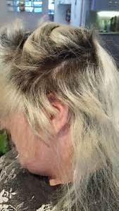 One Woman39s Botched Bleach Job Left Her With A Burnt Scalp