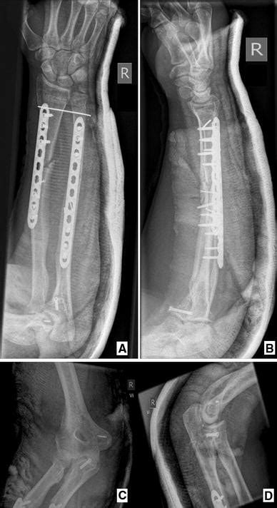 Combined open bipolar Monteggia and Galeazzi fracture: a