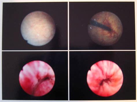 Cystoscopy-im-20050425.jpg