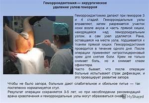 Сужение ануса после операции геморроя