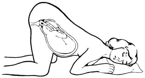 Janin Posisi Melintang Masalah Kehamilan Blogger Perempuan