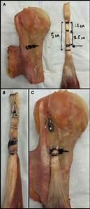 The Suprapectoral Intraosseous Biceps Tenodesis  Spibit