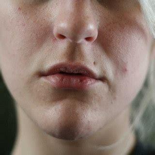lippen hausmittelhexe