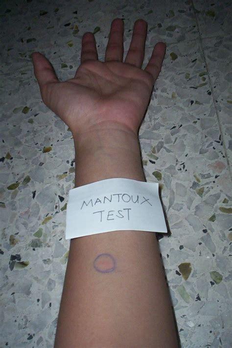 lines mantoux test
