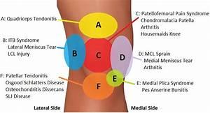Back Pain Diagnosis Chart