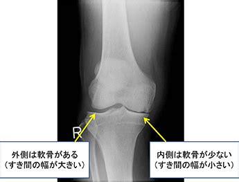 膝 の 内側 の 痛み 治し 方