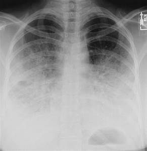 How Serious Is Bilateral  Double  Pneumonia
