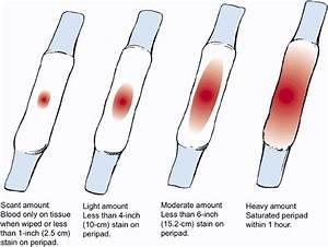 Obs&Gyn: Lochial discharge in postpartum period (puerperium)