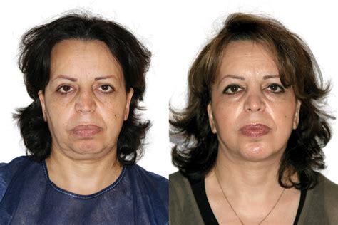Facelift Vorher Nachher by Beispiel 1 Vorher Nachher Bilder Facelift