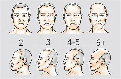 Hair Transplant Norwood Scale Cost Turkey Much