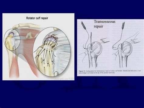 Rotator Cuff Injuries - Dr.CHINTAN N. PATEL