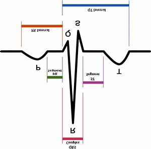 Standard Ecg With Labels
