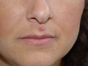 Pin Cystic-hormonal-acne on Pinterest