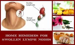Home Remedies Swollen Glands