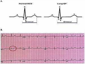 A  Normal And Prolonged Qt Interval B  Prolonged Qt On