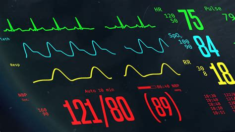 Icu Monitor With Stable Vital Signs, Doctors Monitoring. Ico Signs Of Stroke. Occupational Signs. Plywood Frame Signs. Homeschool Signs. Left Atrial Signs Of Stroke. September 29 Signs Of Stroke. Breeding Pigeon Signs Of Stroke. Antibodies Signs