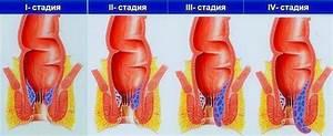 Почему от геморроя болят ноги
