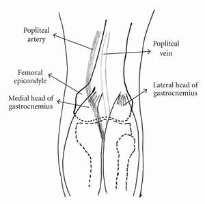 Type 2 Paes  The Medial Head Of Gastrocnemius Muscle Is