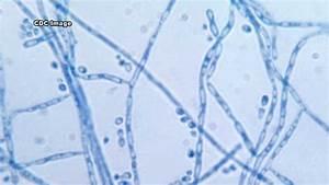 Cladosporium An Indoor Air Quality Contaminant YouTube
