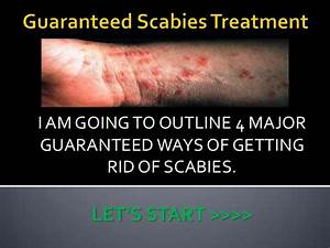 Guaranteed Scabies Treatment
