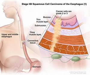 Esophageal Cancer Treatment  Pdq U00ae  U2014patient Version