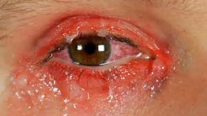 "According to webmd.com, ""Pinkeye (also called conjunctivitis) is ... Conjunctivitis"
