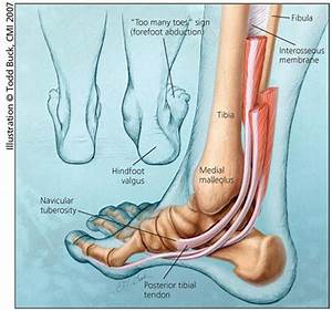 Could You Walk On A Torn Posterior Tibial   Tendon