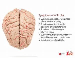 Symptoms Of A Stroke Diagram Of The Brain   Stroke  Brain