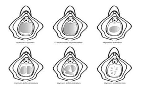 Diversi Tipi Di Vagine - imene e verginit 224 ecco tutto quello c 232 da sapere