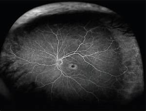 Retinal Physician - The Uncharted Realm of the Retinal ...