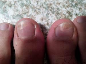 Грибок под ногтем на большом пальце ноги