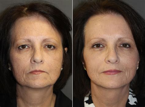 natural surgical facelift pictures boston ma patient