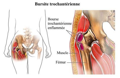 douleur hanche gauche position assise 28 images schmerzen im ges 228 223 auf der rechten und