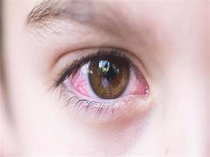 Home Remedies For Pink Eye Energise Kids