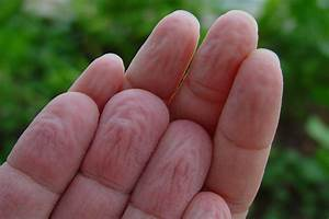 Prune Skin | A Moment of Science - Indiana Public Media