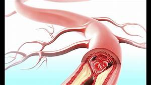 How Stress Can Clog Your Arteries