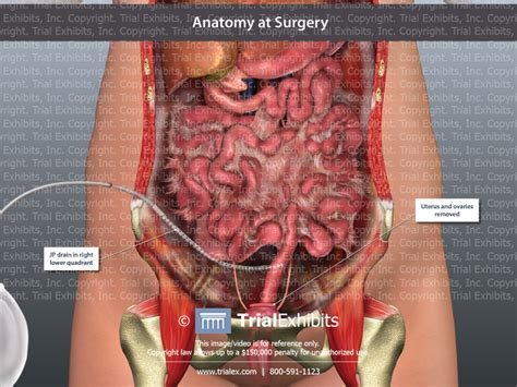 Total Hysterectomy with Bilateral Salpingo-oophorectomy ...