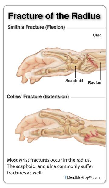 carpal tunnel syndrome fracture