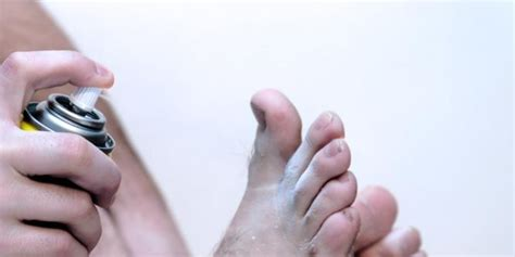 athletes foot treatment  prevention