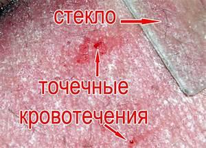 Шиповник при псориазе