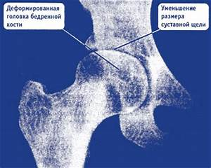 Чем отличается артрит от артроза ревматоидного артрита