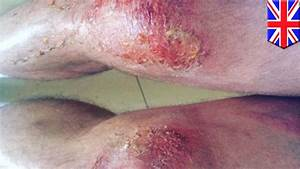 Sport Injuries  Rugby Players Suffer Severe Burns From