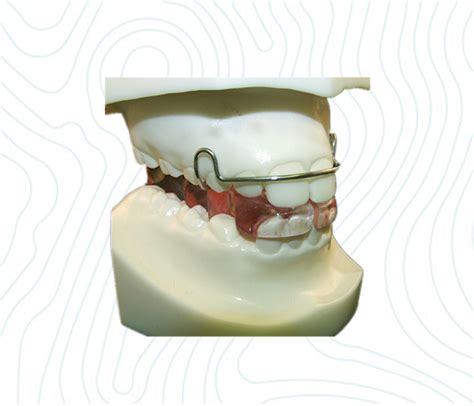 bionator appliance ortholab china orthodontic laboratory
