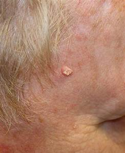 In Clinical Trial  Cream Reduces Squamous Cell Carcinoma