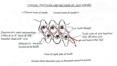 Fabulous Jaw Wiring For Weight Loss Wiring Digital Resources Cettecompassionincorg